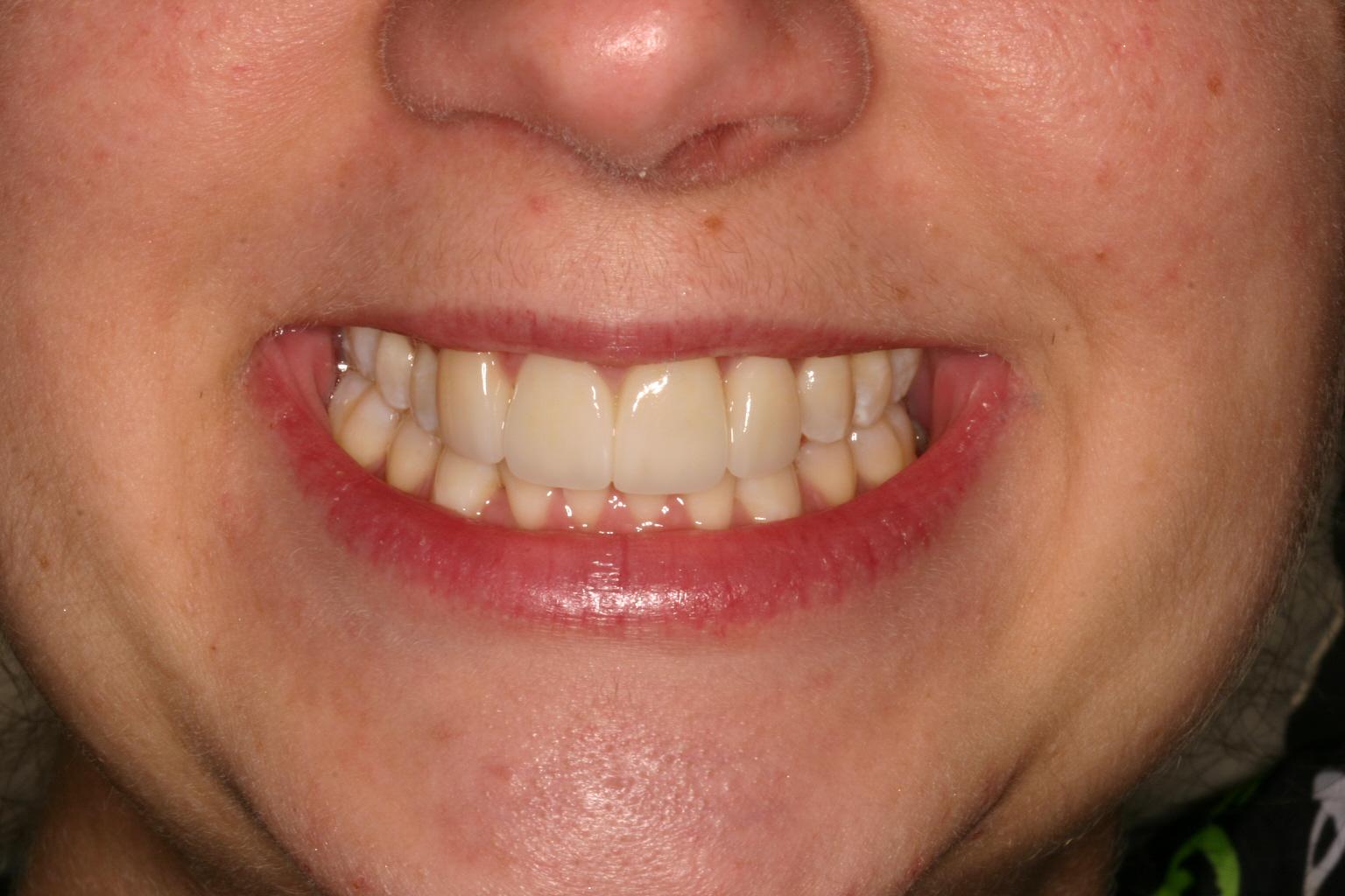 After Smile Makeover