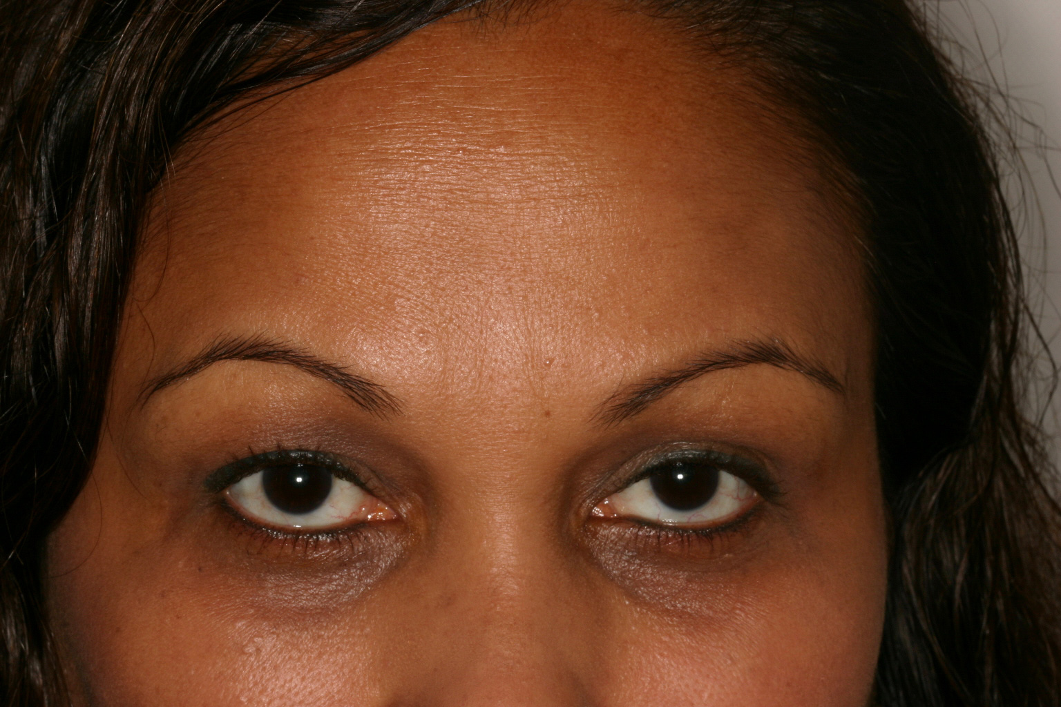 After Botox Forehead 2