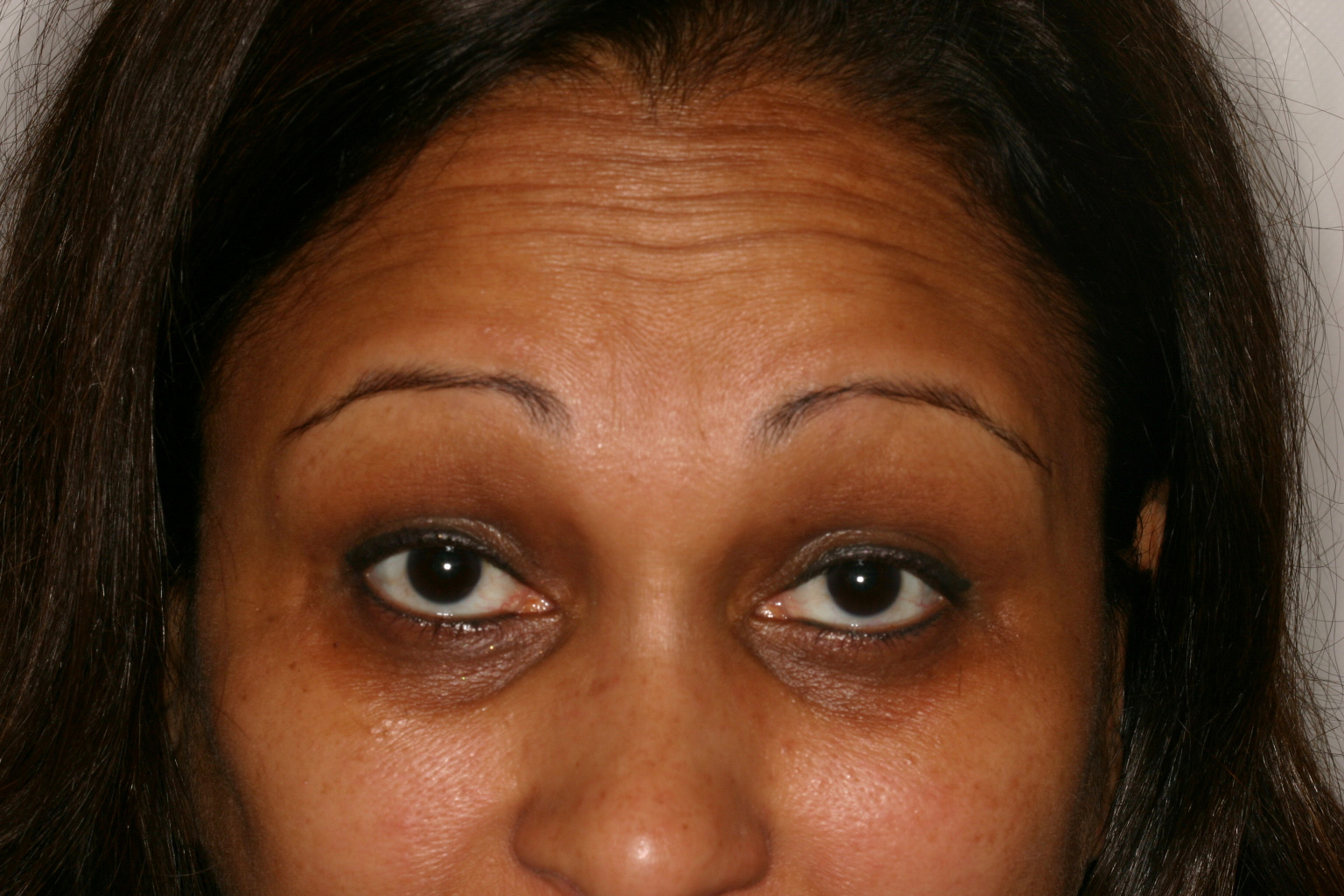 Before Botox Forehead 2
