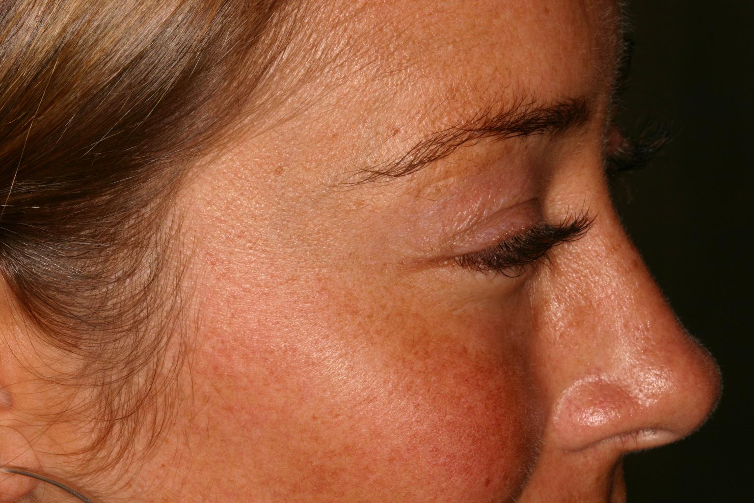 After Botox Eyes