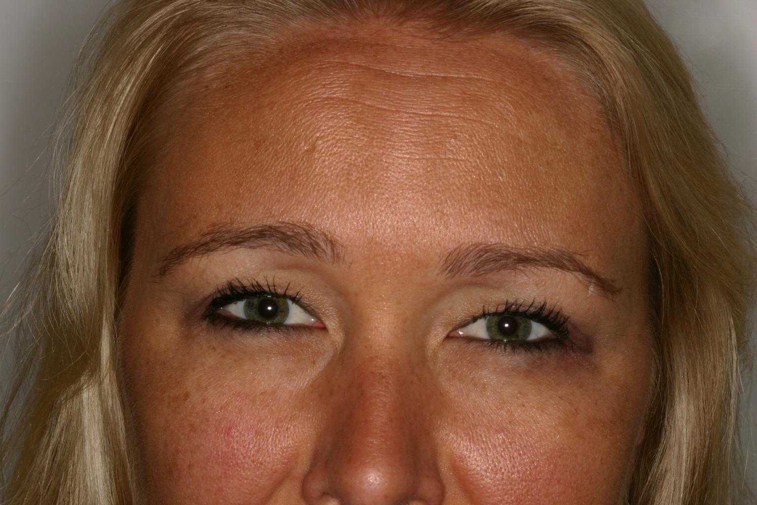 After Botox frown lines
